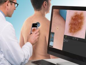 DermaGraphix® | Canfield Scientific